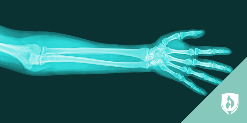 Xray of a hand and forearm
