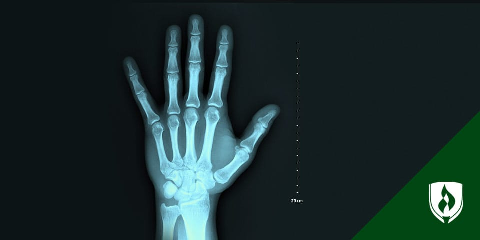 X-ray of hand with measurements