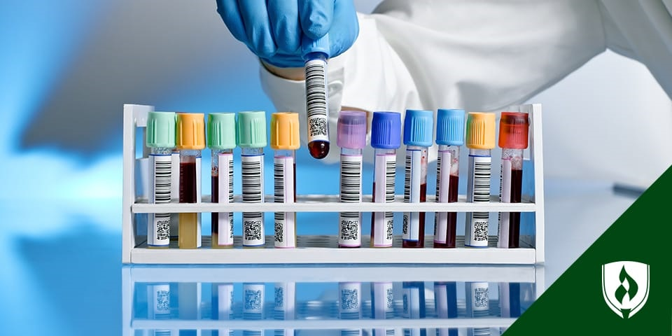 medical lab technician putting blood samples in tray